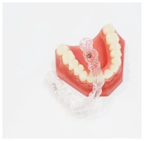 むし歯や歯周病の リスクが低い